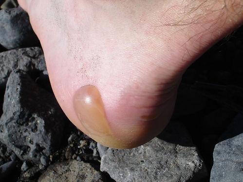 iceland hiking blister