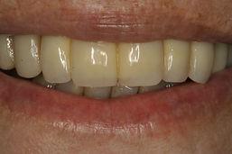 Coroas provisórias sobre os implantes