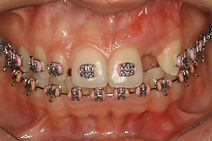 Agenesia dentária