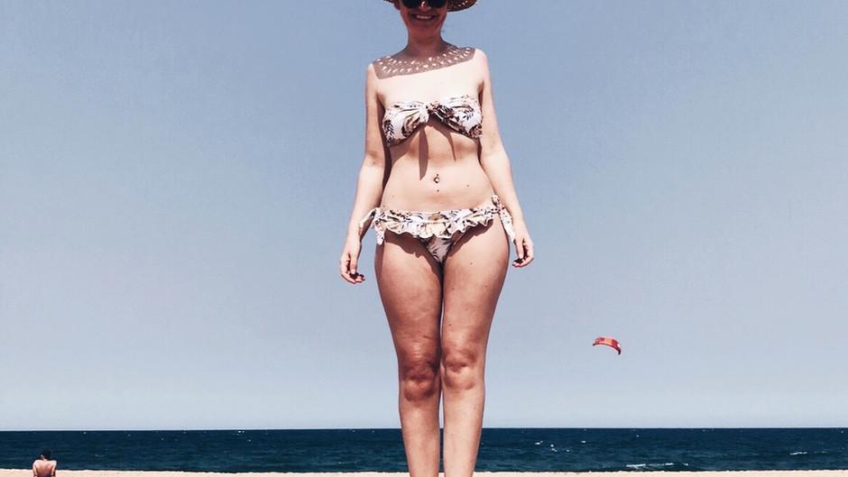Why do Stage 1 lipoedema girls fear wearing a bikini?