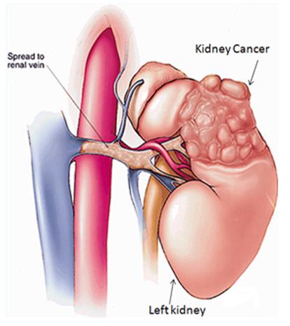 Kidney cancer.png
