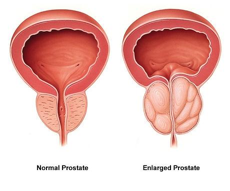 Normal-vs-enlarged-prostate.jpg