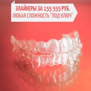 Выравнивание зубов прозрачными элайнерами