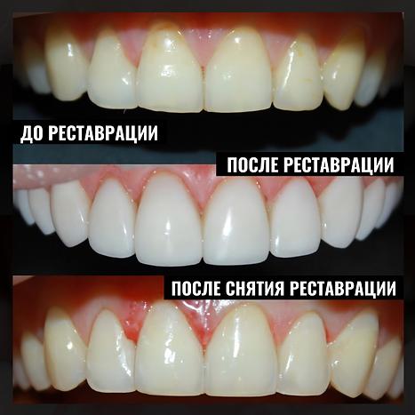 Пример снятия реставрации с зубов