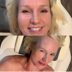 Lip Blushing and Brows