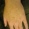 brown spots hand before.png