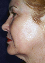 skin tightening after (1).png