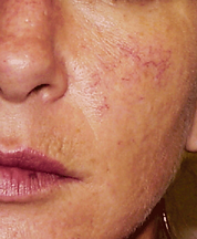 rosacea cheek before.png