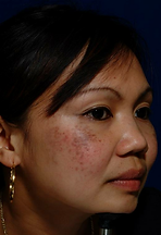 brown spot asian cheeks before.png