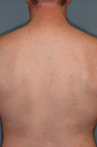hair removal male back after.png