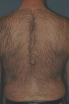 hair removal male back before.png