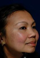 brown spot asian cheek after.png