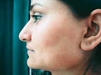 hair removal side burns woman after.png