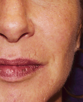 rosacea cheek after.png