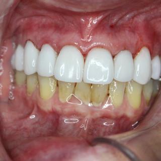 Smile design and dental implants