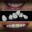Dental artistic por fuera.png