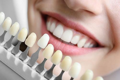 Dental implants.jpeg