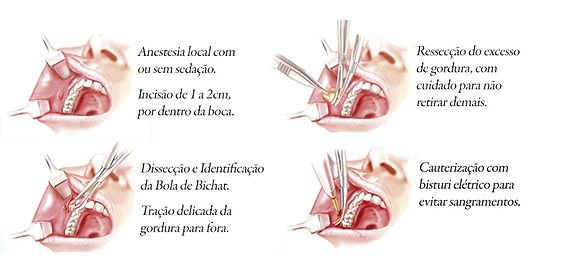 Bochechas (Bichectomia)