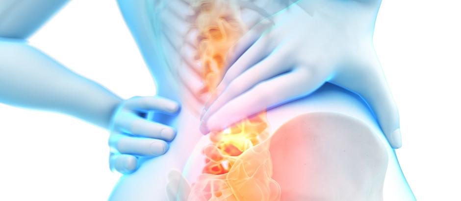 Failed Back Surgery Syndrome (FBSS)