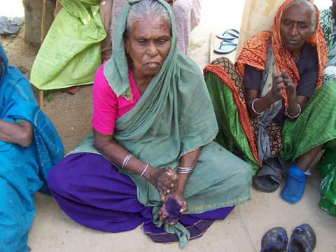 Help for Lepers in India