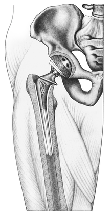 Medical Illustration - hip replacement