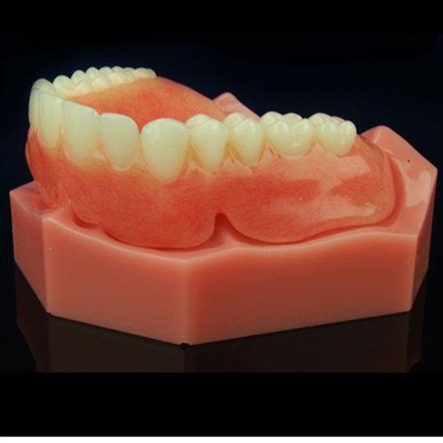 Maxillary Complete Denture