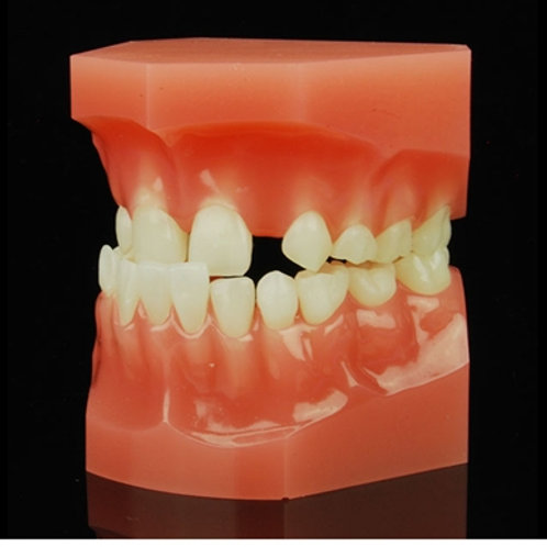 Class 3 Mixed Dentition