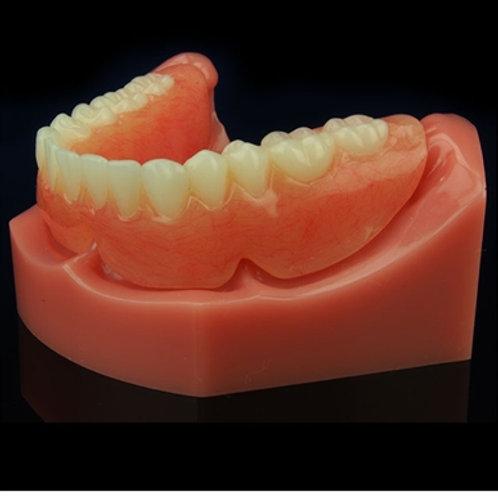 Mandibular Complete Denture