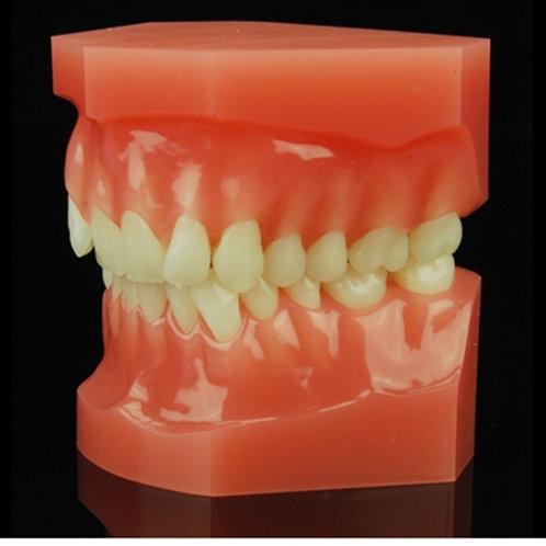 Class 2 Division 2 Permanent Dentition