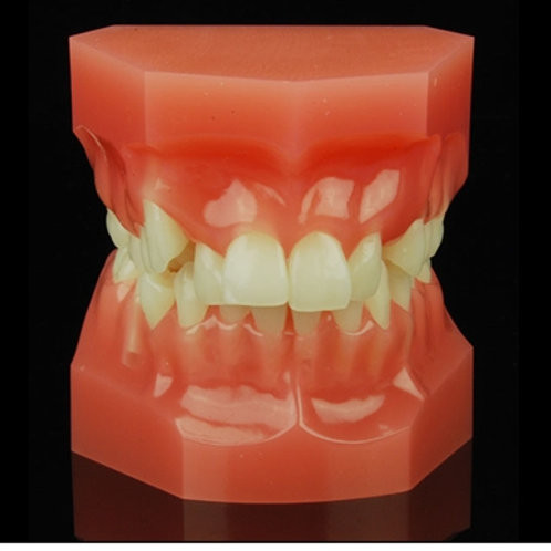 Class 2 Division 2 Mixed Dentition