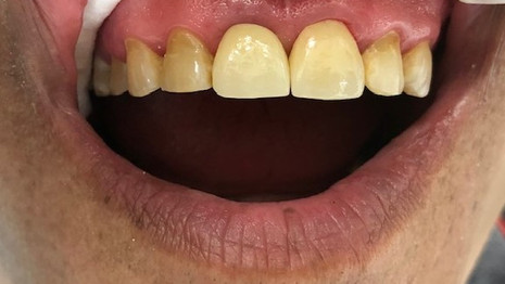 Missing Tooth - After