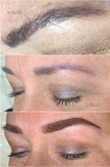 Removal & Color Correction