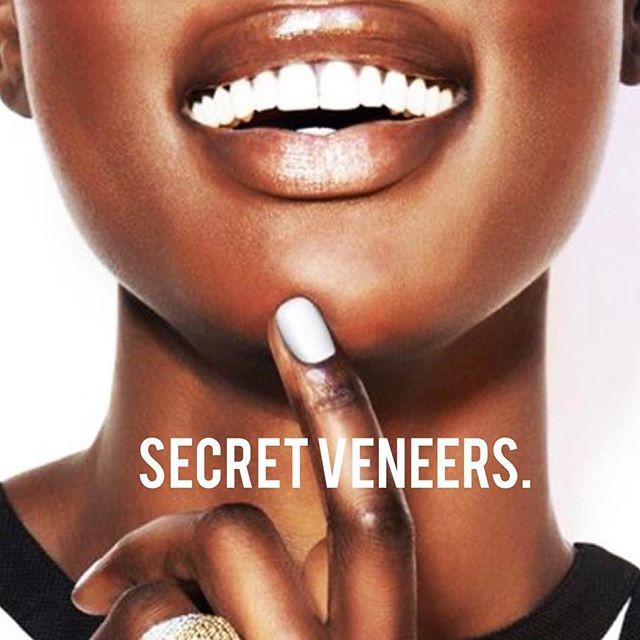 Secret Veneers clip on veneers