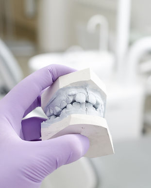 Hand of dentist holding dental gypsum mo