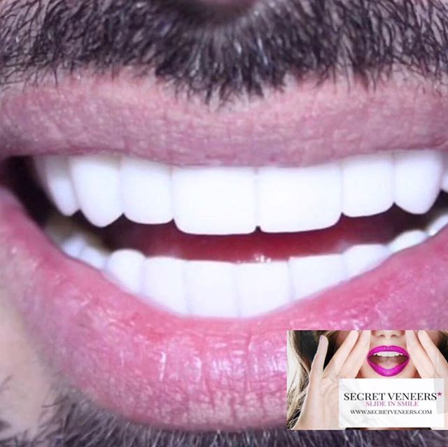 Beauty is a feeling 💖 _secretveneers.jp