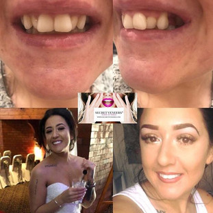 Wedding day confidence MADE ✅ so happy we could provide a solution for this lady on her wedding day #smile #problemsolved #secretveneers #cl