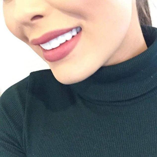 Client wearing colour BL1 Secret Veneers 😬😬😬😬😬