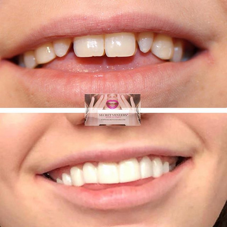 Our client got her new smile today in co