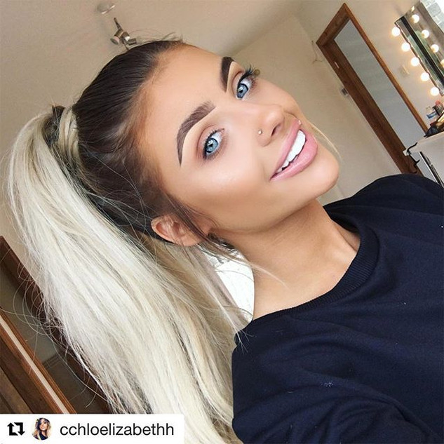 When we made _cchloelizabethh smile confidently with mail order CLIP ON VENEERS.jpg