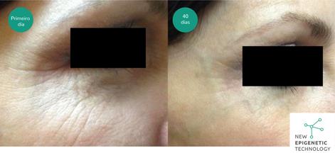 fotos do tratamento 40 dias.png