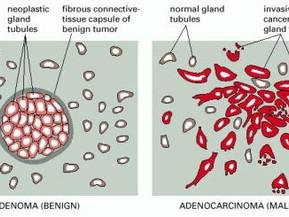 KAKO NASTAJU KARCINOMI-              Karcinogeneza