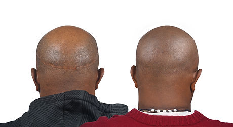 Jorge Before + After Scalp Micro Pigment