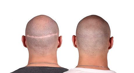 Ronny Before&After Back NO LOGO.jpg