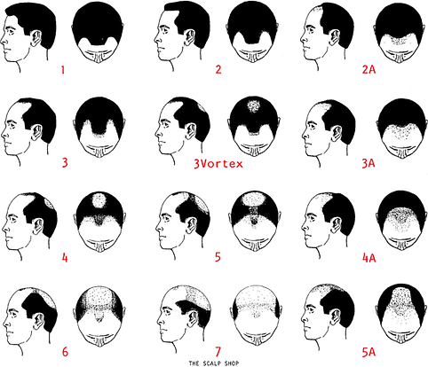 The Scalp Shop | Norwood Scale of Hairlines & Pattern Baldness