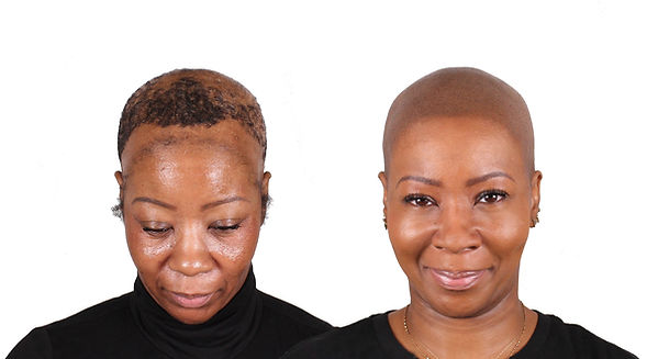 baldie black girl magic smp women.jpg
