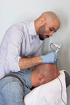 Scalp Micro Pigmentation New York Bald Alopecia Transplant Scar