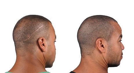 Hair Transplant Scar Camouflage Repair S