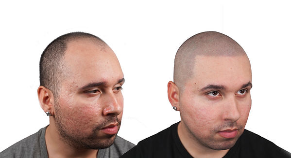 THE SCALP SHOP TRANSFORMATION HAIR RESTO
