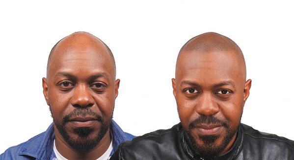 Jelly The Scalp Shop Scalp Micro Pigmentation Before After SMP New York Front.jpg