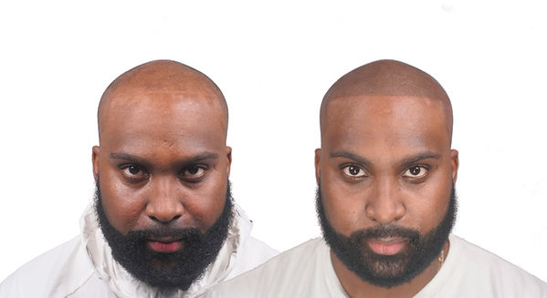 Akil Before&After Front NO LOGO.jpg